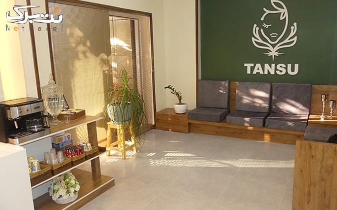 لیزر موهای زائد در مرکز زیبایی تانسو