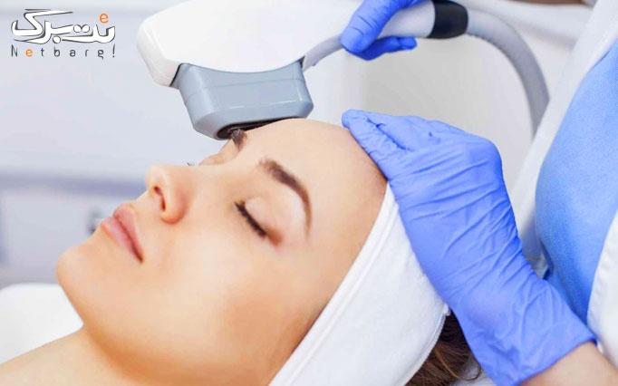 لیزر موهای زائد با دستگاه آلما در کلینیک مریم