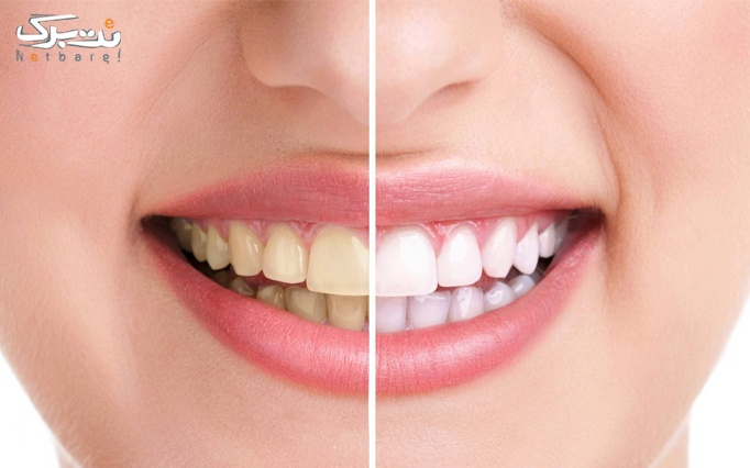 خدمات دندانپزشکی در کلینیک زیبایی قرن 21