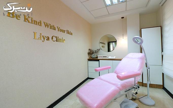 لیزر موهای زائد با الکساندرایت کندلا در لیا کلینیک
