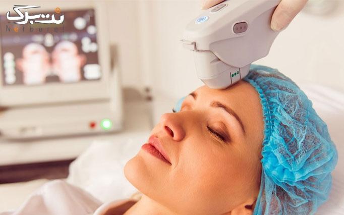هایفوتراپی در کلینیک پوست و مو حنا