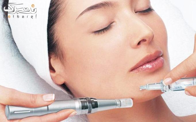 میکرونیدلینگ در کلینیک پوست و مو حنا