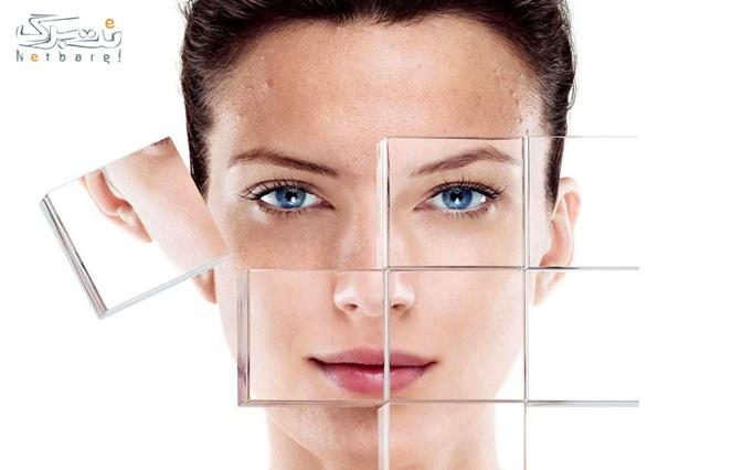 کربوکسی تراپی در کلینیک پوست و مو حنا