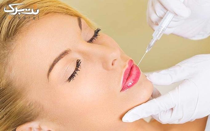 تزریق ژل لب هایومکس در مطب دکتر حنانه عظیمی