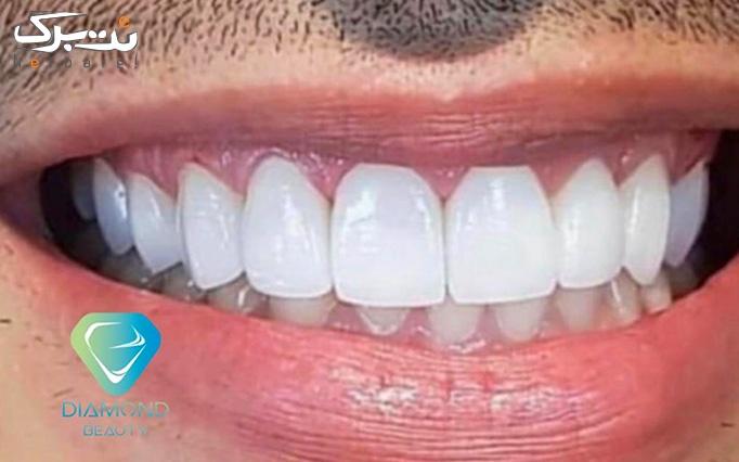 خدمات دندانپزشکی در دندانپزشکی دیاموند