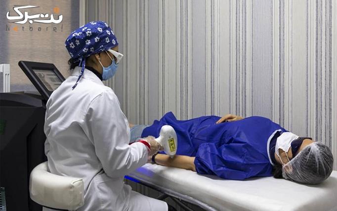لیزر موهای زائد با دستگاه الکس 2020 در مرکز کارا