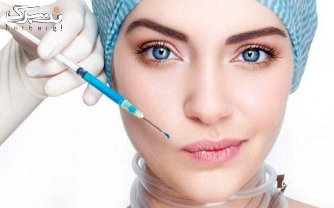 تزریق بوتاکس مسپورت در مطب دکتر حقیقی