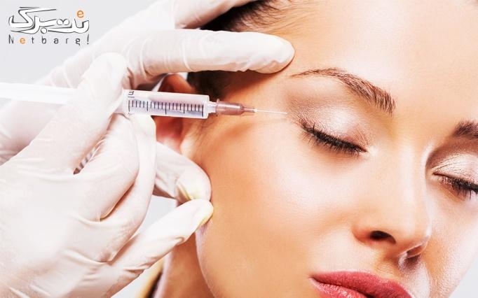 تزریق ژل در مطب دکتر نظری