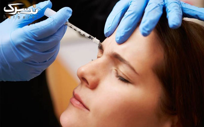 تزریق بوتاکس مسپورت در مرکز پوست و مو سلین