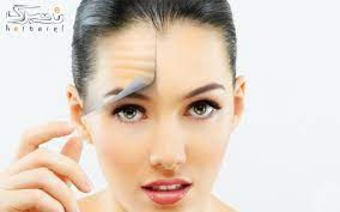 تزریق بوتاکس مسپورت در کلینیک پوست و مو نوژن