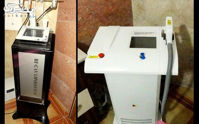 لیزر با دستگاه IPL در مطب خانم دکتر اَبوالمعالی