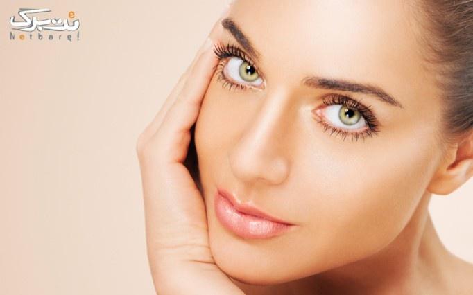 جوانسازی و فرم دهی صورت به روشRF در کلینیک زیبایی خانم دکتر سهیلیان