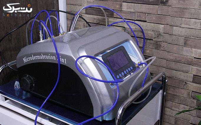 لیزر Elight + RF موهای زائد در مطب خانم دکتر نوربخش