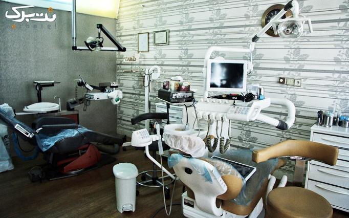 بیلیچینگ در کلینیک دندانپزشکی دکتر میرجوادی