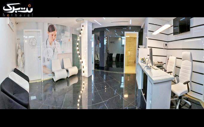 لیزر Alex دکا در کلینیک تخصصی پوست و موی رز (کیمیای سابق)