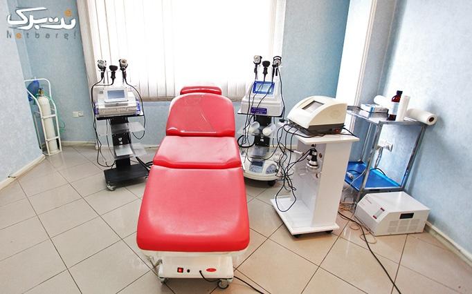 کویتیشن، RF یا LPG بدن در کلینیک  تندیس جردن
