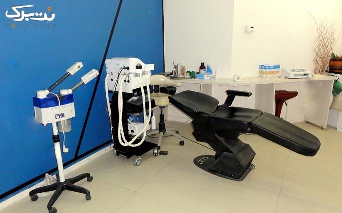 درمان جای جوش و آکنه با درمارولر در مطب دکتر صفار