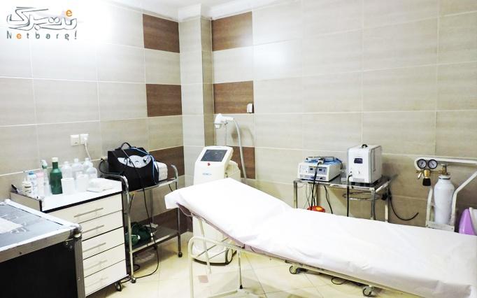 میکرونیدلینگ در مجتمع پزشکی زیبایی آرتین