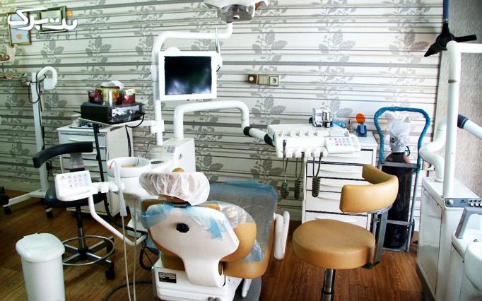 ایمپلنت در کلینیک دندانپزشکی دکتر میرجوادی