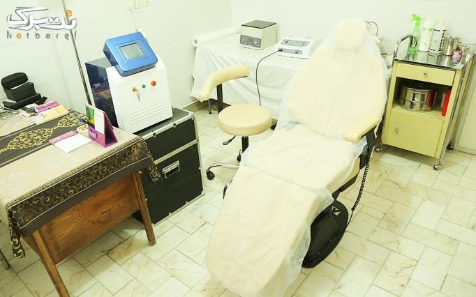لیزرelight موهای زائد در مطب دکتر فراهانی