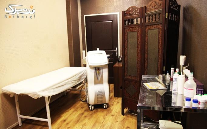 رفع خالکوبی در کلینیک سینا
