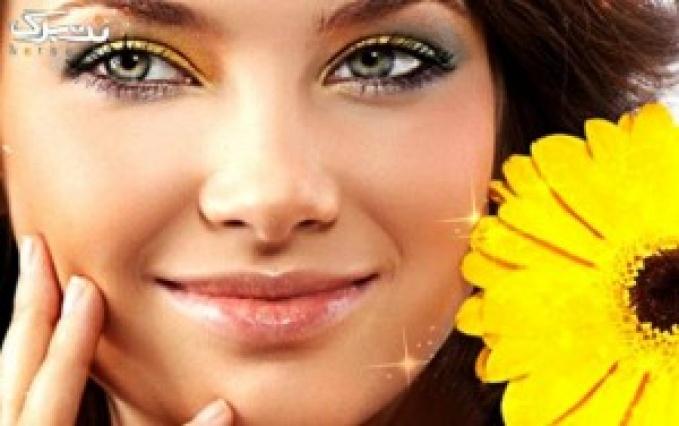 میکرودرم صورت در مطب زندگی زیبا