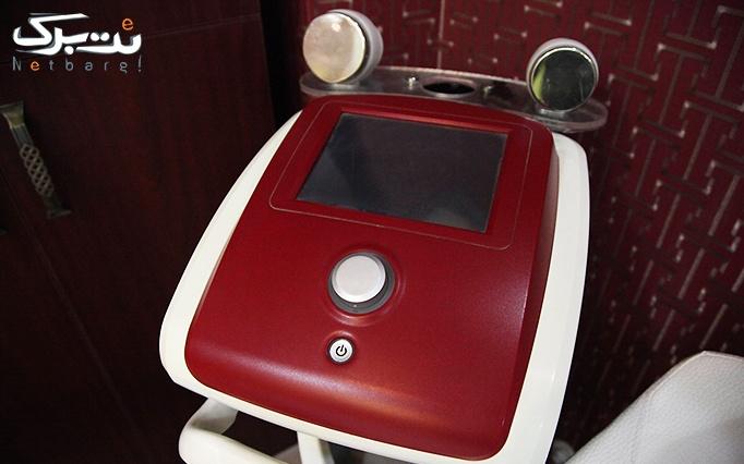 لیزر SHR در مطب دکتر افلاکی