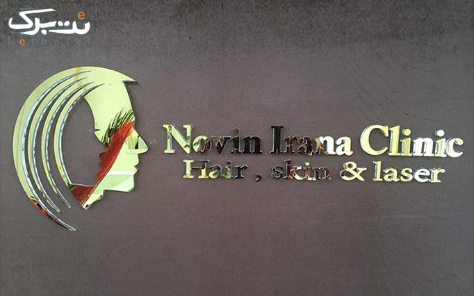 لیزر IPL در مجموعه پوست و مو نوین ایرانا