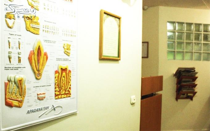 بلیچینگ دندان در مطب دکتر صفورا قریشی