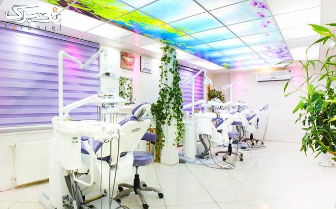 جرمگیری و کشیدن دندان در مرکز دندانپزشکی آرنا