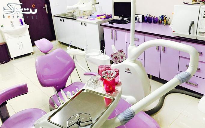 جرم گیری دندان در مطب دندانپزشکی دکتر محمدزاده