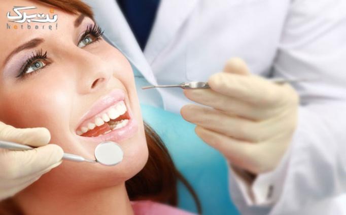 جرم گیری و بروساژ دندان در فراز