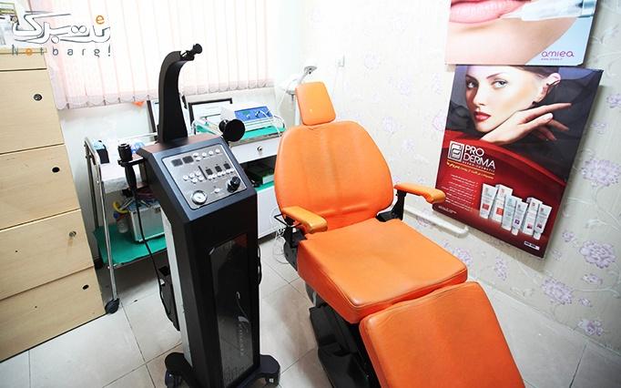 لیزر IPL  در مطب دکتر قناعت پیشه