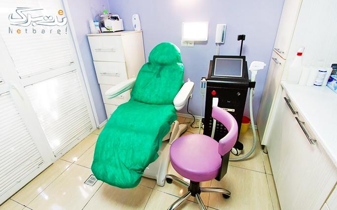 خالبرداری در مطب خانم دکتر حسینی