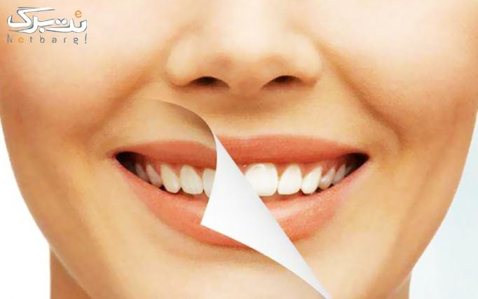جرم گیری و بروساژ در درمانگاه دندانپزشکی پارمیس